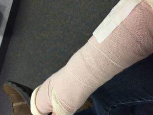 Carrie's broken arm